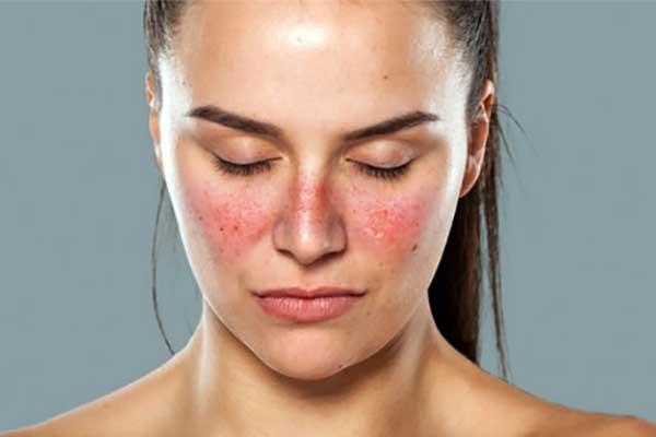 triệu chứng bệnh lupus ban đỏ