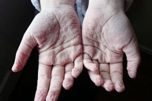 Tại sao da tay bị nhăn khi gặp nước