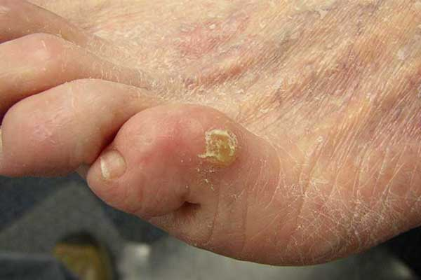 bị nổi mụn nước ngứa ở chân