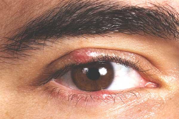 mọc lẹo ở mắt