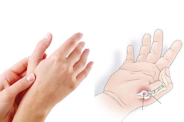 viêm bao gân ngón tay